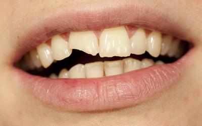 Jacaranda-Family-Dental-Broken-Tooth