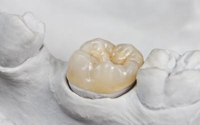 Jacaranda-Family-Dental-Crown-onlay