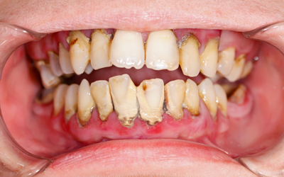 Jacaranda-Family-Dental-Gum-Disease
