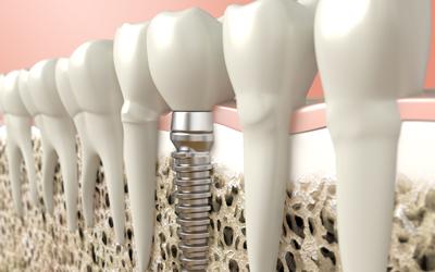 Jacaranda-Family-Dental-Implant