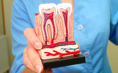 Jacaranda-Family-Dental-Root-Canal