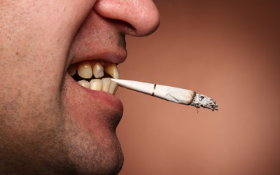 Jacaranda-Family-Dental-Smoking