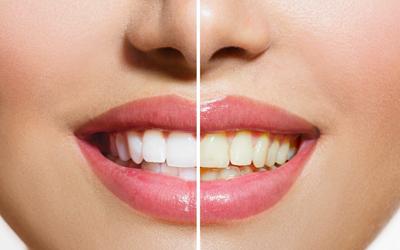 Jacaranda-Family-Dental-Teeth-Whitening